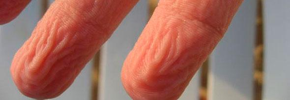 por qué se arruga la piel con el agua